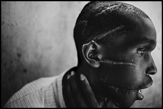 Survivor of Hutu death camp by James Nachtwey // World Press Photo